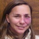 Dr. Linda Lee Buckley, MD